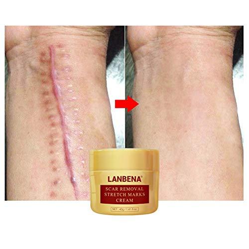 ColorfulLaVie Herbal Repair Cream, Akne Narben-Creme Reparieren, Anti-Akne Gel Akne Pickel Behandlung Dehnungsstreifenentfernung
