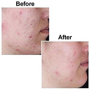 Original Kojie San Facial Beauty Soap - 100g, 3 Bars Per Pack - Guaranteed Authentic