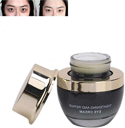 Anti-Wrinkle Eye Cream, Moisturizes The Eyes, Anti Aging Eye Balm for Removes Dark Circles,Improve Eye Bags, Eye Puffiness,Smoothes Wrinkles, Lifts Firming Eye Area, Reduces Fat Granules