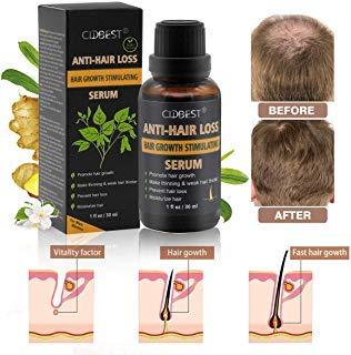 Hair Growth Serum, Hair Treatment, Hair Serum, Hair Loss Treatment, Natural Hair Growth - Anti Hair Loss Promotes Hair Growth, Solution for Hair Thinning and Loss, Hair Regrowth For Men Women