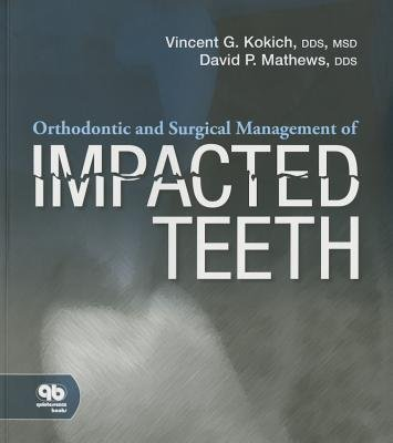 [Orthodontic and Surgical Management of Impacted Teeth] [Author: Kokich, Vincent] [February, 2014]