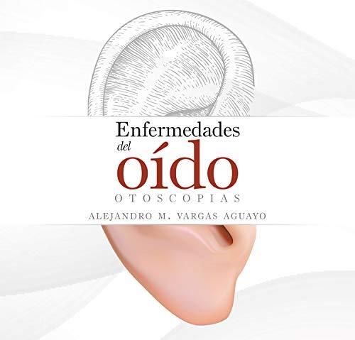 Enfermedades del oído: otoscopias (Spanish Edition)