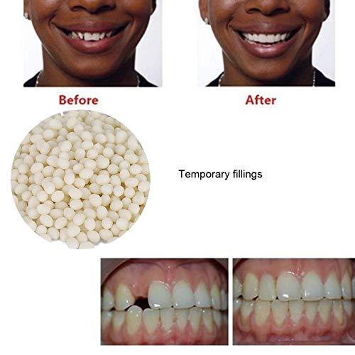 XIAOFANG Zahngebisse 2ST 50g falsche Zähne Feste Kleber temporäre Zahn Reparatur Lücken Gebisskleber Zahnpflege Werkzeug Zähne