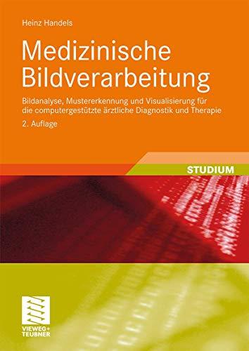 Medizinische Bildverarbeitung: Bildanalyse, Mustererkennung und Visualisierung für die computergestützte ärztliche Diagnostik und Therapie (XStudienbücher Medizinische Informatik)