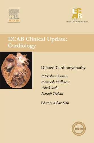 Dilated Cardiomyopathy - ECAB (English Edition)