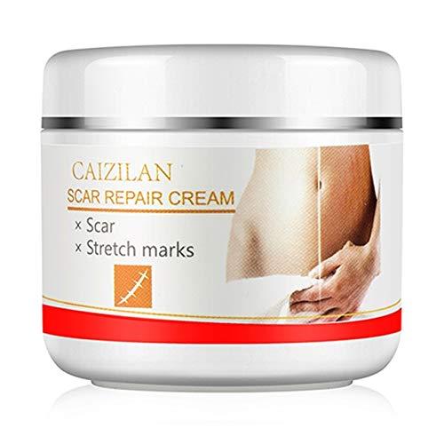 Landia Natural Eficaz Crema Anti-Estrías Abdomen Suave Antiarrugas 30g Moda Mujer Salud Belleza Crema de Reparación Postparto