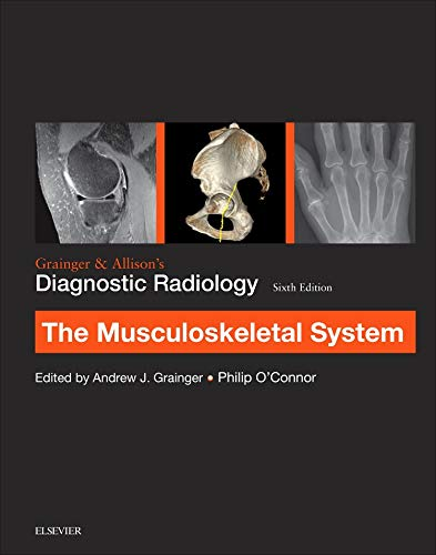 Grainger & Allison's Diagnostic Radiology: Musculoskeletal System, 6e