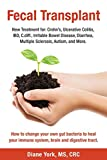 Fecal Transplant: New Treatment for Ulcerative Colitis, Crohn's, Irritable Bowel Disease, Diarrhea, C.diff., Multiple Sclerosis, Autism, and More: How ... immune system, brain and digestive tract.