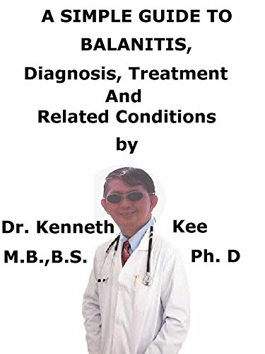 A  Simple  Guide  To  Balanitis,  Diagnosis, Treatments   And  Related Conditions (A Simple Guide to Medical Conditions) (English Edition)