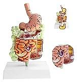 JKFZD Modelo de la Enfermedad colónica Humana: Modelo patológico intestino Grande Modelo gastrointestinal para la investigación científica