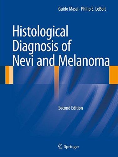Histological Diagnosis of Nevi and Melanoma (English Edition)