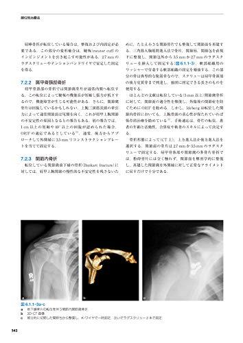 『AO法骨折治療[英語版Web付録付] 第3版』のトップ画像