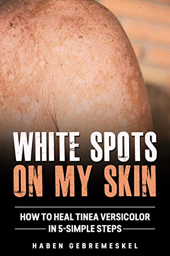 White Spots On My Skin: How To Heal Tinea Versicolor In 5-Simple Steps (Pityriasis, Patchy Skin, Sun Spots, Peter Elam's Disease, Skin Color Changed, Infection) (English Edition)