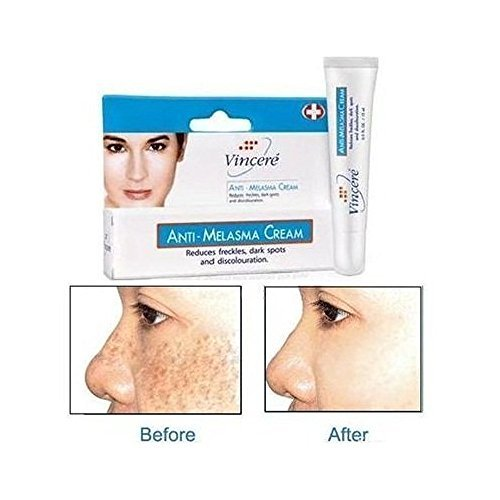 Top Quality VINCERE ANTI-MELASMA CREAM - Help to fade freckles dark spots discoloration -15ml