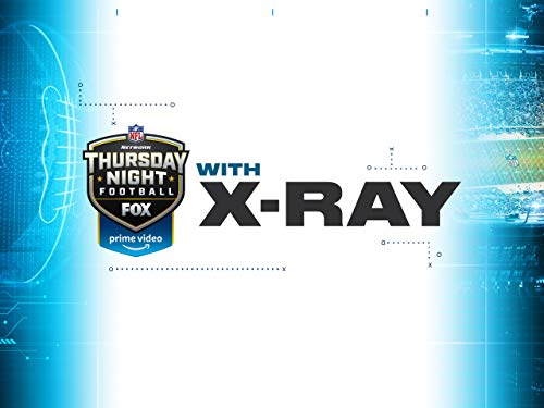 Watch the Game Like Never Before with X-Ray