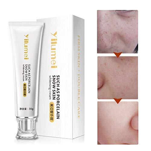 Mimiga Whitening Cream Whitening Serum Hautcreme Whitening Creme zum entfernen von Sommersprossen braunen Flecken Anti Blemish