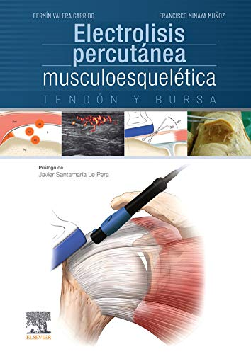 Electrolisis percutánea musculoesquelética. Tendón y burs