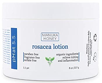 Rosacea Cream - with Manuka Honey Aloe Vera & Coconut Oil Extract - Redness Inflammation Acne and Rosacea Relief - Itch & Scar Treatment - Paraben & Sulfate Free  8 oz