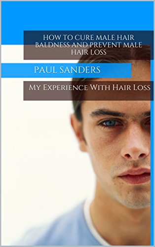 How to Cure Baldness and Prevent Male Hair Loss (Mens Hair Loss, Propecia, Minoxidil, Receding Hair Line, Hair Regrowth, male pattern baldness, mens hair) (English Edition)