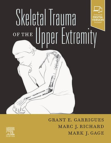 Skeletal Trauma of the Upper Extremity, E-Book (English Edition)