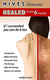 HIVES(Urticaria)HEALED In just 6 months: If i succeeded you do it too