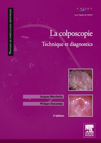 La colposcopie: Technique et diagnostics (Pratique en gynécologie-obstétrique) (French Edition)