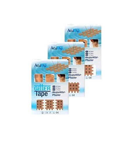 AcuTop® Gitter Tape Set Typ A + Typ B + Typ C (Beige)