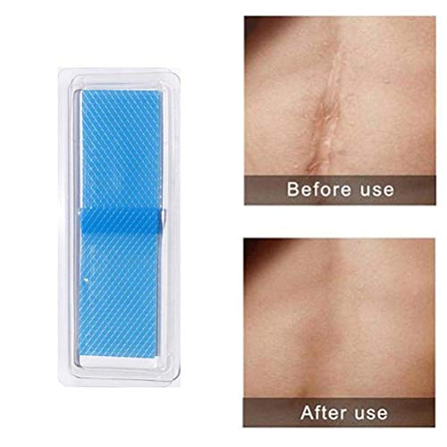 Weedon Professional Grade Silicone Scar Treatment Sheets/Scar Plaster for Application