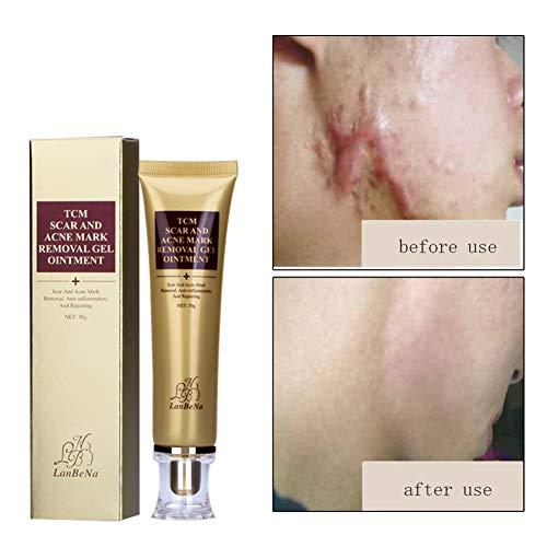 Crème pour Cicatrices, KISSION Traitement Crème,Gel pour Cicatrices,Enlever la Crème de Cicatrice,Dissiper la Cicatrice,Taches Cicatrice Blemish Points 30ML