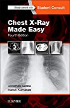 Best chest xrays made easy Reviews