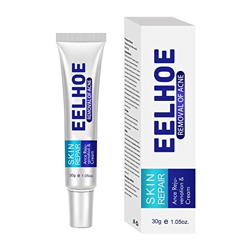 Crema para el acné, crema antimanchas, tratamientos para las manchas del acné, crema para el acné, crema para eliminar las cicatrices del acné, removedor de acné, hidratante para la piel y la cara