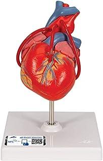 3B Scientific Corazón Clásico con Bypass, De 2 Piezas - 3B Smart Anatomy