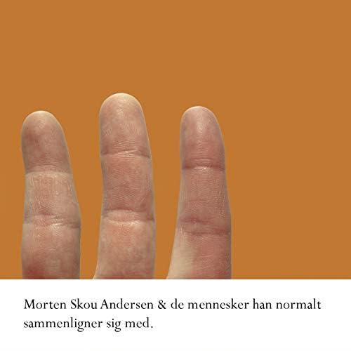 Morten Skou Andersen & de mennesker han normalt sammenligner sig med