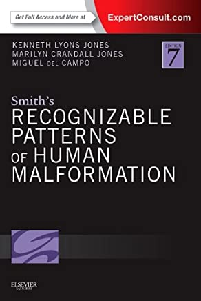 Smiths Recognizable Patterns of Human Malformation: Expert Consult - Online and Print [Lingua inglese]