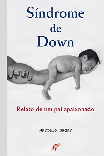 Síndrome de Down: Relato de um pai apaixonado (Marcelo Nadur)