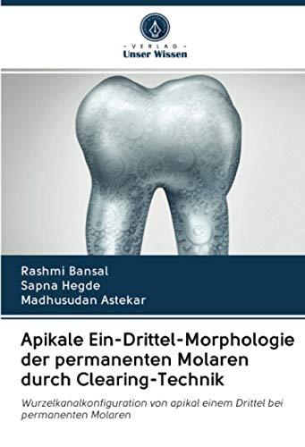 Apikale Ein-Drittel-Morphologie der permanenten Molaren durch Clearing-Technik: Wurzelkanalkonfiguration von apikal einem Drittel bei permanenten Molaren