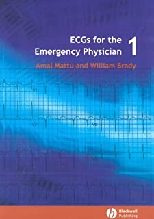 ECG's for the Emergency Physician 1