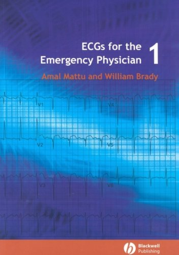 Compare Textbook Prices for ECG's for the Emergency Physician 1 1 Edition ISBN 9780727916549 by Mattu, Amal,Brady, William J.