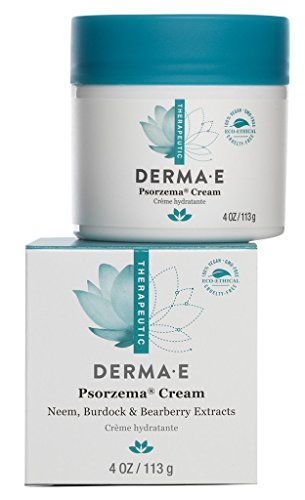 DERMA E Psorzema Cream, Natural Relief for Scaling, Flaking, and Itching, 4 Oz