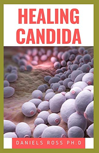 HEALING CANDIDA: Healthy Holistic Comprehensive Natural Treatment Approach to Curing and Healing Candidiasis Infection
