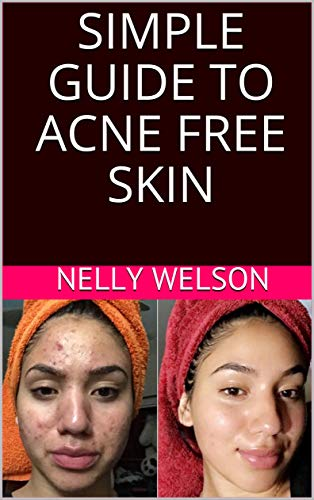 SIMPLE GUIDE TO ACNE FREE SKIN (English Edition)