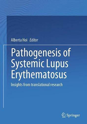 Pathogenesis of Systemic Lupus Erythematosus: Insights from translational research