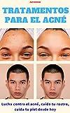 Tratamientos para el acné: Combate el acné, cuida tu cara, cuida tu piel desde hoy
