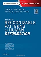 Smith's Recognizable Patterns of Human Deformation (Smiths Recognizable Patterns of Human Deformation)