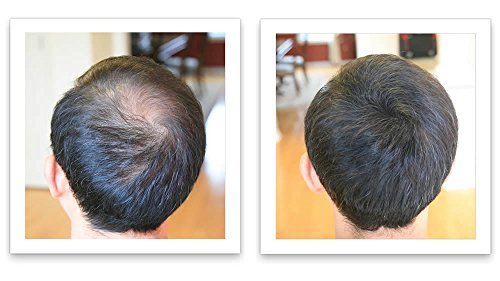 Caboki Hair Loss Concealer - Dark Brown 30G (90-day Supply)