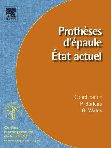 Prothèses d'épaule. État actuel (Cahiers d'enseignement de la SOFCOT) (French Edition)