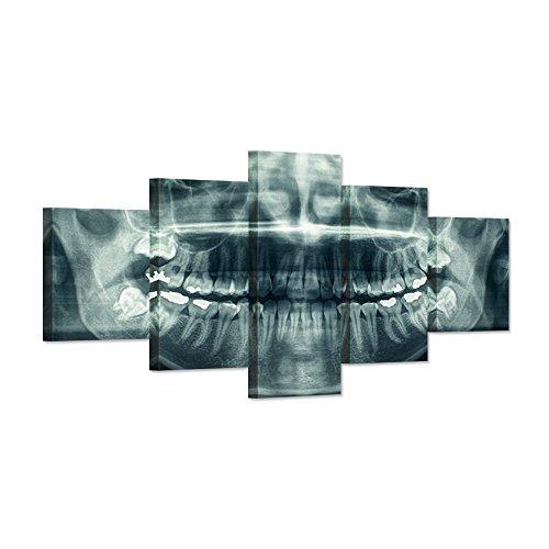 Modern Home Canvas Art X-Ray Dental Tooth