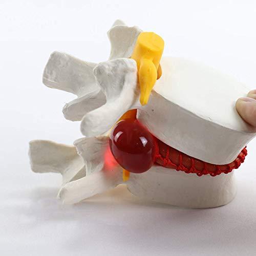 Modelo Educativo Demostración de Hernia de Disco Lumbar Modelo de Columna Masaje médico