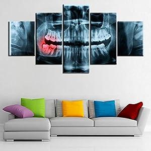 zxddzl 5 Pièce Toile X-Ray Douloureux Dents Médecin Dentaire Image Toile Image Peinture Décor De Chambre Impression Affiche Mur Art