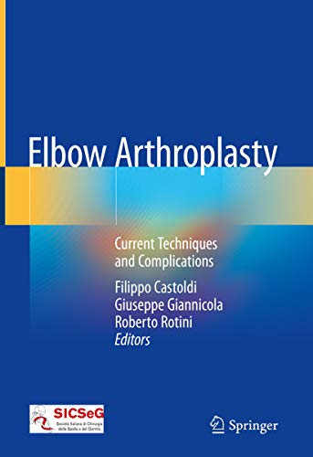 Elbow Arthroplasty : Current Techniques and Complications (English Edition)